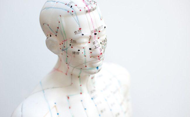 meridiane-akupunktur